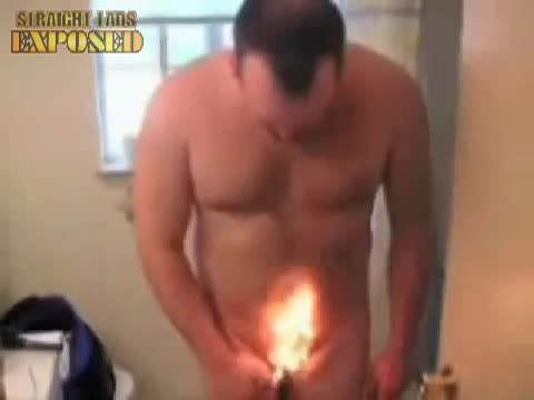 rugby player pube burn